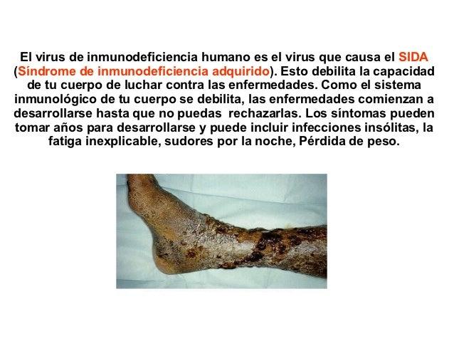 El virus de inmunodeficiencia humano es el virus que causa el SIDA(Síndrome de inmunodeficiencia adquirido). Esto debilita...