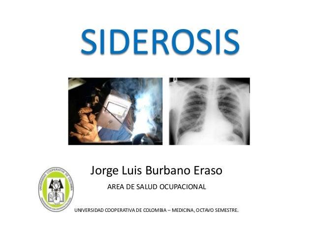 SIDEROSIS      Jorge Luis Burbano Eraso            AREA DE SALUD OCUPACIONALUNIVERSIDAD COOPERATIVA DE COLOMBIA – MEDICINA...