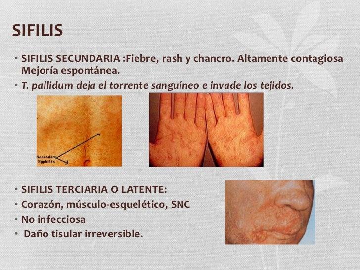 SIFILIS<br />SIFILIS SECUNDARIA :Fiebre, rash y chancro. Altamente contagiosa Mejoría espontánea.<br />T. pallidum deja el...