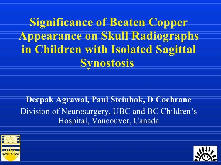 Significance of Beaten Copper Appearance on Skull Radiographs in Children with Isolated Sagittal Synostosis  Deepak Agrawa...