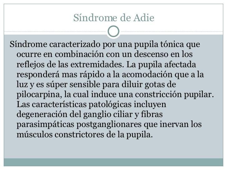 Síndrome de Adie <ul><li>Síndrome caracterizado por una pupila tónica que ocurre en combinación con un descenso en los ref...