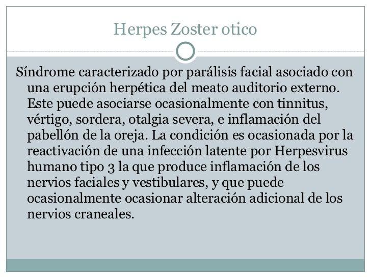 Herpes Zoster otico <ul><li>Síndrome caracterizado por parálisis facial asociado con una erupción herpética del meato audi...