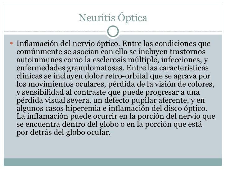 Neuritis Óptica <ul><li>Inflamación del nervio óptico. Entre las condiciones que comúnmente se asocian con ella se incluye...