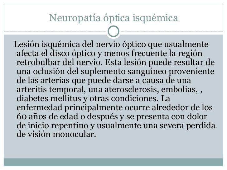Neuropatía óptica isquémica <ul><li>Lesión isquémica del nervio óptico que usualmente afecta el disco óptico y menos frecu...
