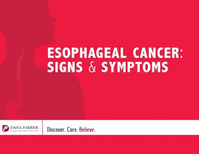 • Signs, Symptoms, and Risk Factors • How Esophageal Cancer is Treated • Diagnosing Esophageal Cancer • Support for Esopha...