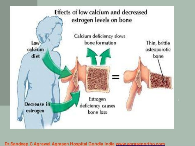 silent bone disease osteoporosis -hidden facts,red flags,prevention …, Skeleton