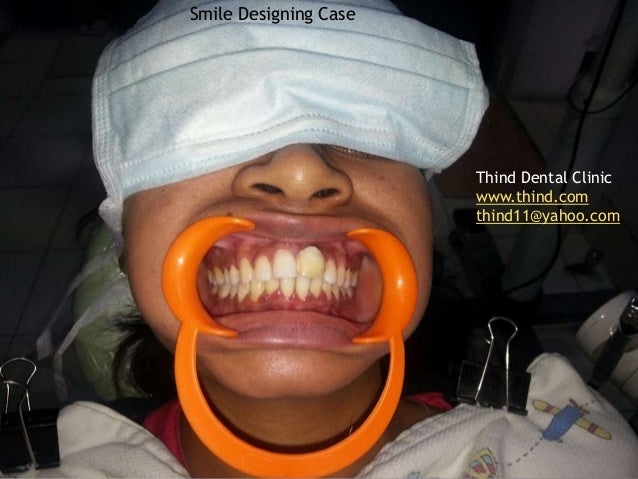 Smile Designing CaseThind Dental Clinicwww.thind.comthind11@yahoo.com