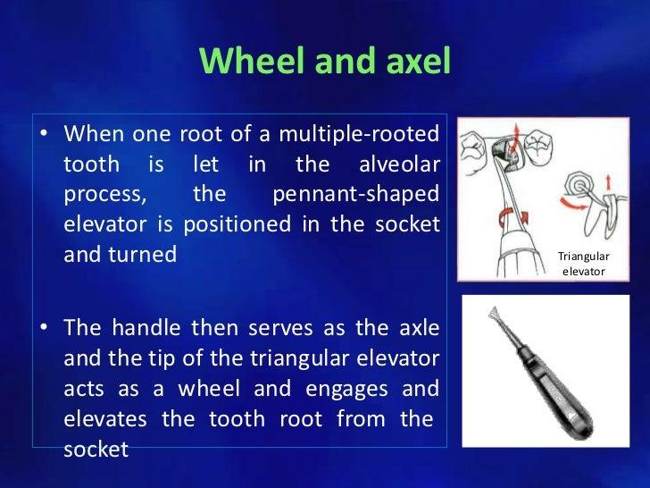 diagram of elevator drawings of elevators