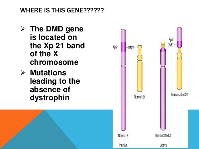 an overview of duchennes muscular dystrophy and the defective gene on the x chromosome The main cause of duchenne muscular dystrophy (dmd) an x chromosome overviewasp 4 muscular dystrophy is a defective gene.