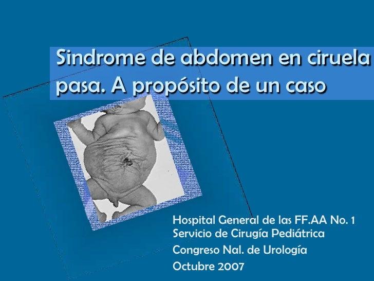 Sindrome de abdomen en ciruela pasa. A propósito de un caso<br />Hospital General de las FF.AA No. 1  Servicio de Cirugía ...