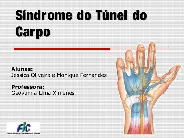 Síndrome do Túnel doSíndrome do Túnel do CarpoCarpo Alunas:Alunas: Jéssica Oliveira e Monique Fernandes Professora:Profess...