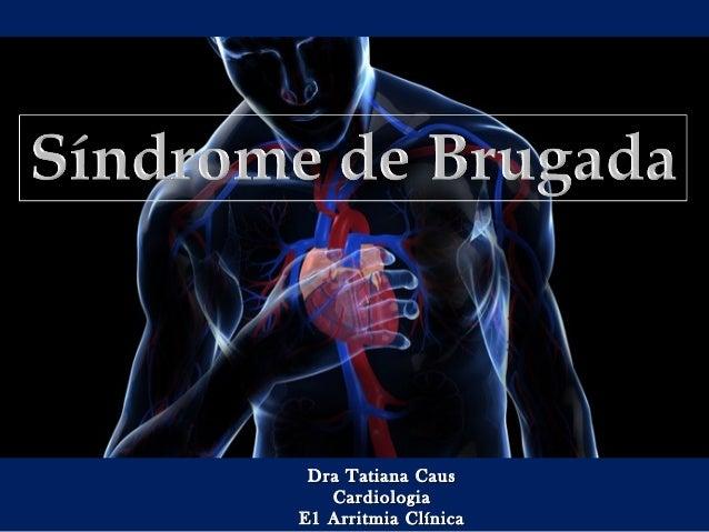 Dra Tatiana CausDra Tatiana Caus CardiologiaCardiologia E1 Arritmia ClínicaE1 Arritmia Clínica
