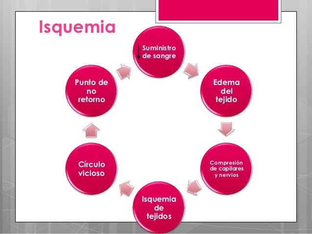 presión en elcompartimiento   Edema  afectado                            Mediadores                                       ...