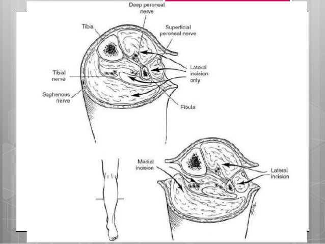 Fasciotomía de extremidad              superiorAntebrazo:• Incisiones       dorsal y palmar• Incisión dorsal es recta• Inc...
