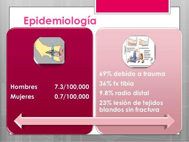 Epidemiología                        69% debido a trauma                        36% fx tibiaHombres   7.3/100,000         ...