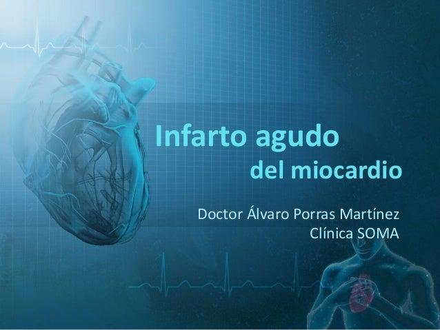 del miocardio Doctor Álvaro Porras Martínez Clínica SOMA Infarto agudo