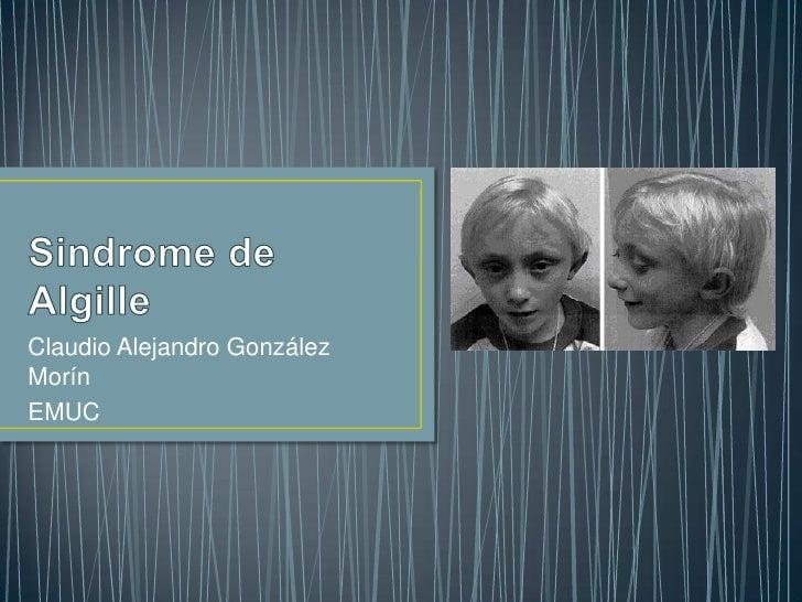 Sindrome de Algille<br />Claudio Alejandro González Morín<br />EMUC<br />