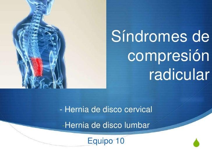 Síndromes de                compresión                   radicular- Hernia de disco cervical-Hernia de disco lumbar       ...