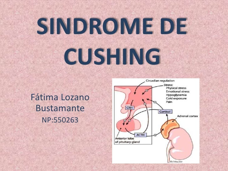 SINDROME DE   CUSHINGFátima Lozano Bustamante  NP:550263