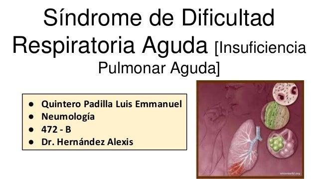 Síndrome de Dificultad Respiratoria Aguda [Insuficiencia Pulmonar Aguda] ● Quintero Padilla Luis Emmanuel ● Neumología ● 4...