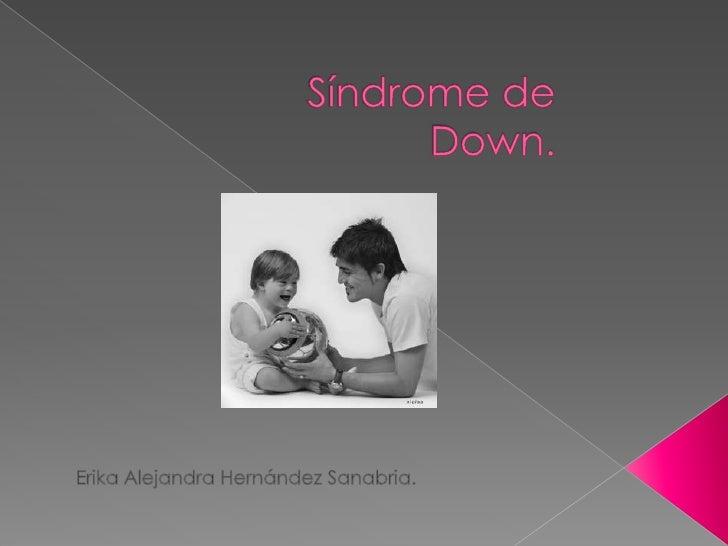 Síndrome de Down.<br />Erika Alejandra Hernández Sanabria.<br />