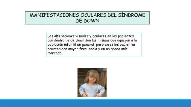 3f0746dafc MANIFESTACIONES OCULARES DEL SÍNDROME DE DOWN Las alteraciones visuales y  oculares en los pacientes con síndrome ERRORES REFRACTIVOS ...