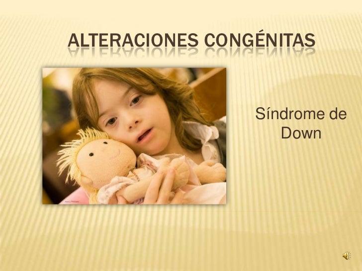 ALTERACIONES CONGÉNITAS<br />Síndrome de Down<br />