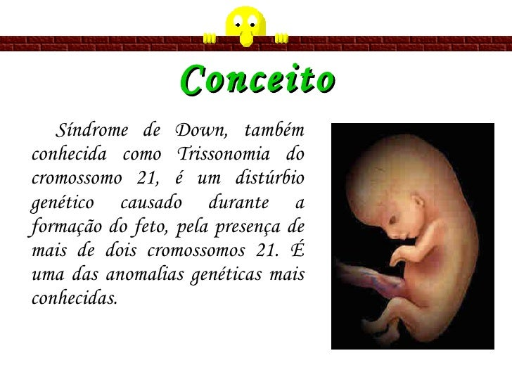 Conceito <ul><li>Síndrome de Down, também conhecida   como Trissonomia do cromossomo 21, é um distúrbio genético causado d...