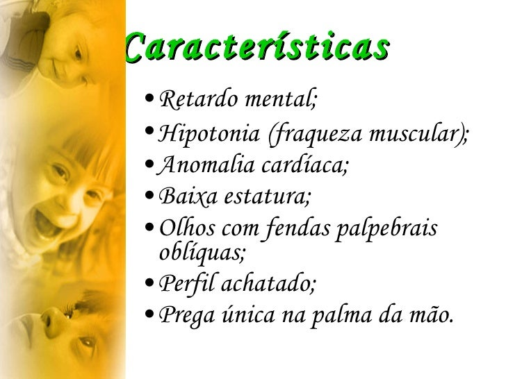 Características <ul><li>Retardo mental;  </li></ul><ul><li>Hipotonia   (fraqueza muscular);  </li></ul><ul><li>Anomalia ca...