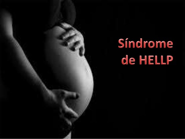 """• Es un grupo de síntomas que se presentan en las mujeres embarazadas que padecen: • H : hemólisis • EL: (""""elevated liver ..."""