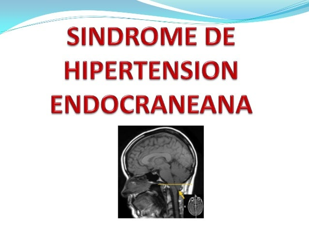 DefiniciónEl síndrome de hipertensión endocraneana (SHE) consisteen el conjunto de síntomas y signos ocasionados por laele...