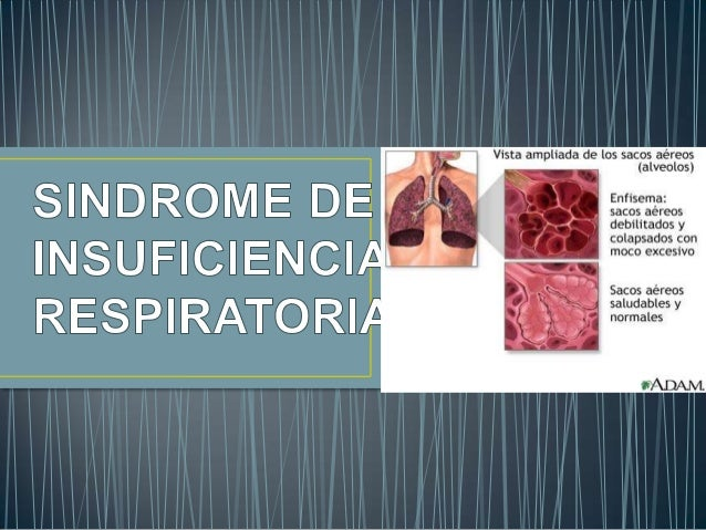 • A mas de un sindrome, se considera como unestado en el cual el aparato respiratorio esincapaz de mantener niveles adecua...