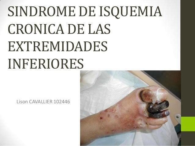 De que se forma la tromboflebitis