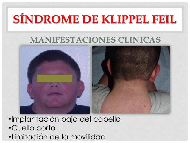 Resultado de imagen para Síndrome de Klippel Feil