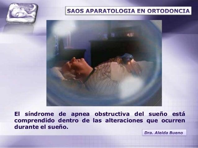 Sindrome de la apnea obstructiva del sueño