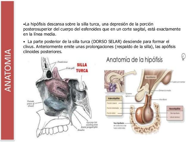 Sindrome de la silla turca vacia