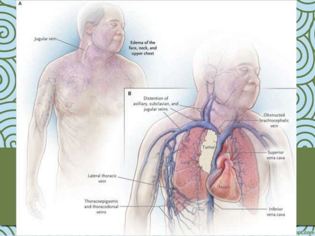Síndrome De Vena Cava Superior - HD