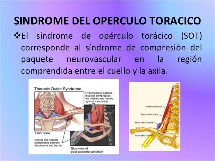 Sindrome del operculo_toracico(neurofisiologia)