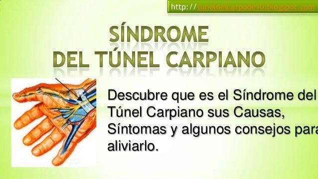 Descubre que es el Síndrome delTúnel Carpiano susCausas, Síntomas y algunosconsejos para aliviarlo.http://tuneldelcarpode1...