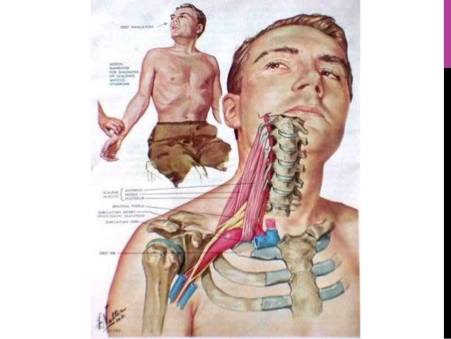 Sindrome de salida toracica
