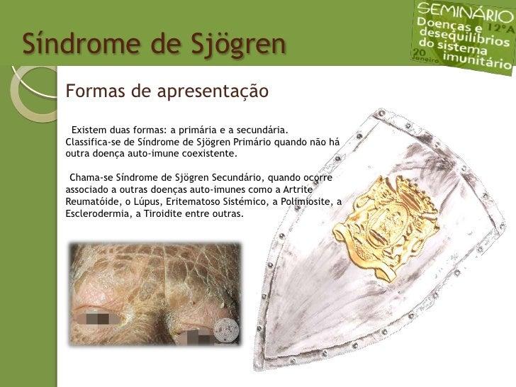 Sindrome de SjöGren Slide 3