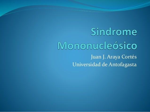 Juan J. Araya Cortés Universidad de Antofagasta