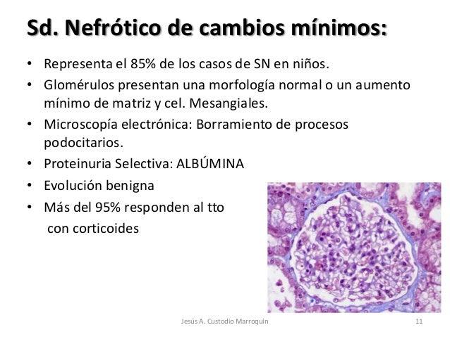 Sd. Nefrótico de cambios mínimos:• Representa el 85% de los casos de SN en niños.• Glomérulos presentan una morfología nor...