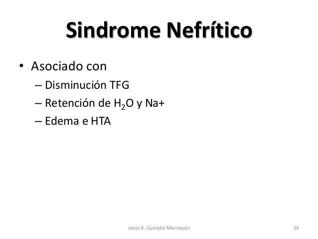 Sindrome Nefrítico• Asociado con  – Disminución TFG  – Retención de H2O y Na+  – Edema e HTA                   Jesús A. Cu...