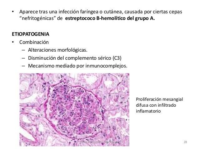 """• Aparece tras una infección faríngea o cutánea, causada por ciertas cepas  """"nefritogénicas"""" de estreptococo B-hemolítico ..."""