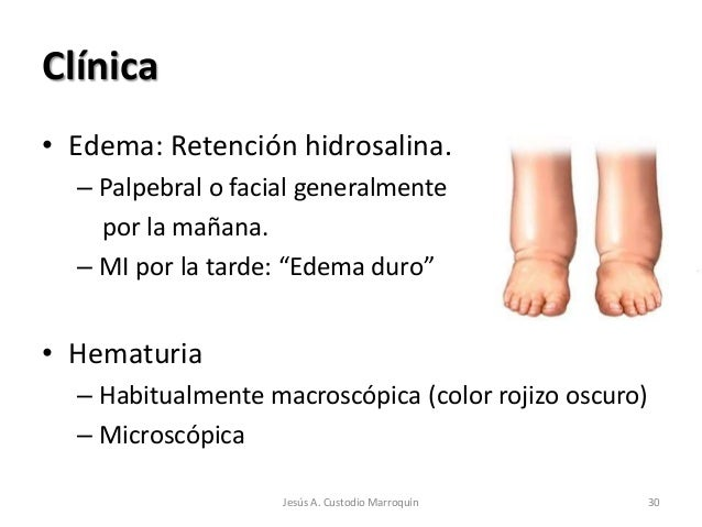"""Clínica• Edema: Retención hidrosalina.  – Palpebral o facial generalmente    por la mañana.  – MI por la tarde: """"Edema dur..."""