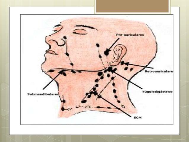 Las sensaciones desagradables en las manos a la osteocondrosis