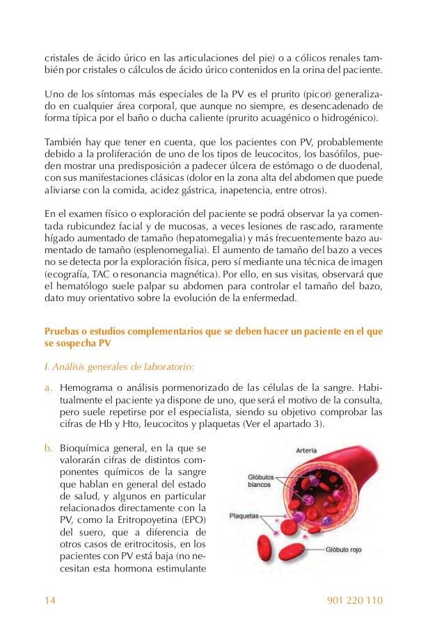 remedios caseros para acido urico rodillas que puedo comer si tengo el acido urico alto alimentos ricos en acido urico tomate