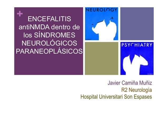 +  ENCEFALITIS antiNMDA dentro de los SÍNDROMES NEUROLÓGICOS PARANEOPLÁSICOS  Javier Camiña Muñiz R2 Neurología Hospital U...