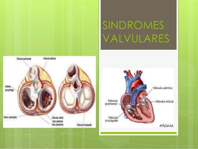 SINDROMESVALVULARES